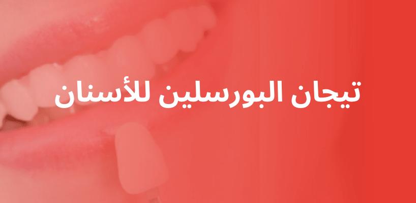 تيجان البورسلين للأسنان