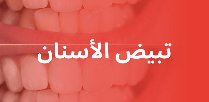 تبيض الأسنان