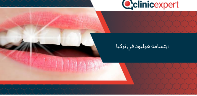 Hollywood Smile Fixhair Istanbul 5