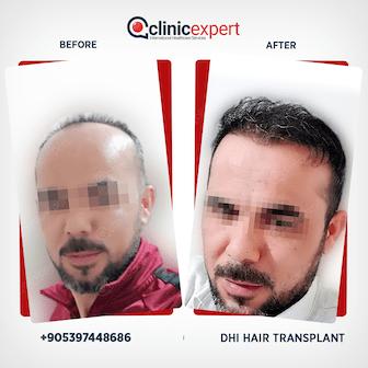 DHI Hair Transplant Patient
