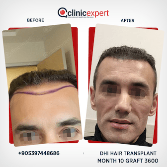 DHI Hair Transplant - 10 Months- 3600 Grafts
