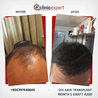 DHI Hair Transplant - 5 Months- 4200 Grafts