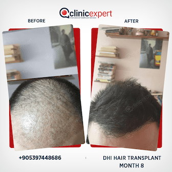 DHI Hair Transplant-8 Months Results