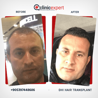 Hair Transplant Results- DHI- Before and After