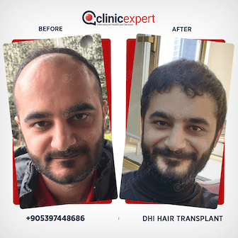 Results-DHI- Hair Transplant