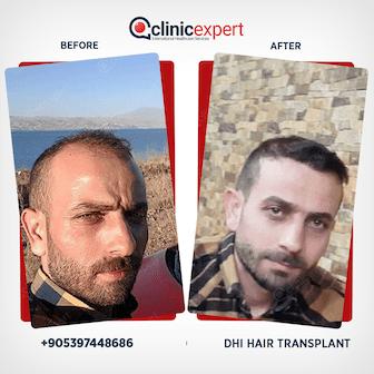 Result-Hair Transplant-DHI