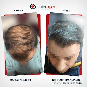 DHI Hair Transplant-16 months- 3950 Grafts