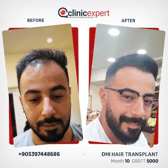 DHI Hair Transplant- 10 Months - 5000 Grafts