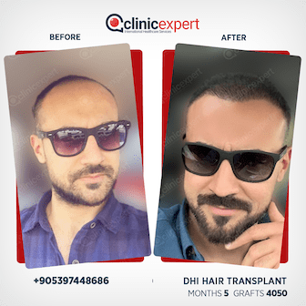 DHI Hair transplant-5 months-4050Grafts