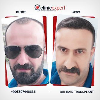 Before and after DHI Hair Transplant