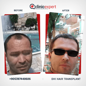 DHI Hair transplant Before and After