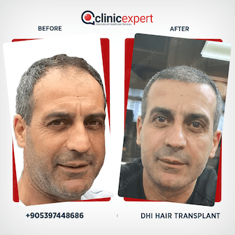 DHI Hair Transplant- Before and After results