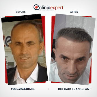 Before and After-Hair Transplant -DHI