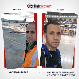 DHI Hair Transplant-12 months- 4250 Grafts
