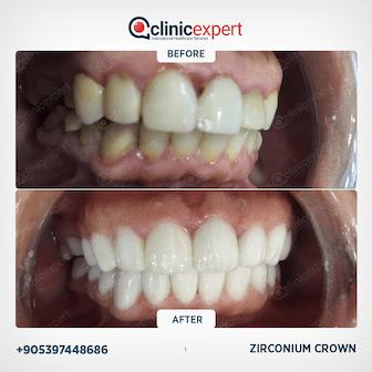 Dental Aesthetic