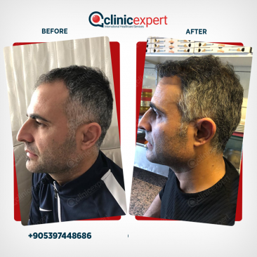 Hair Transplant-DHI-Before and After