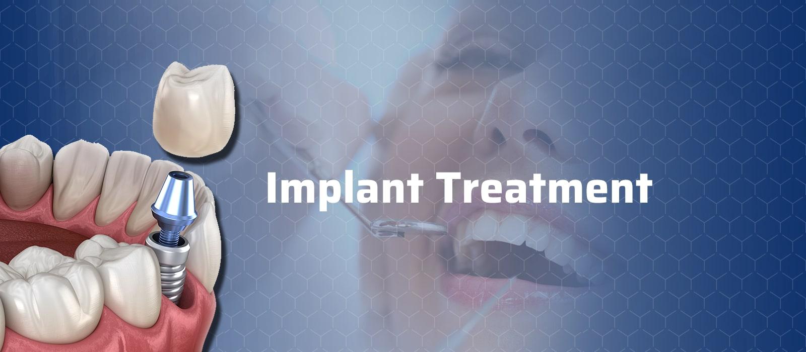 Implant Treatment