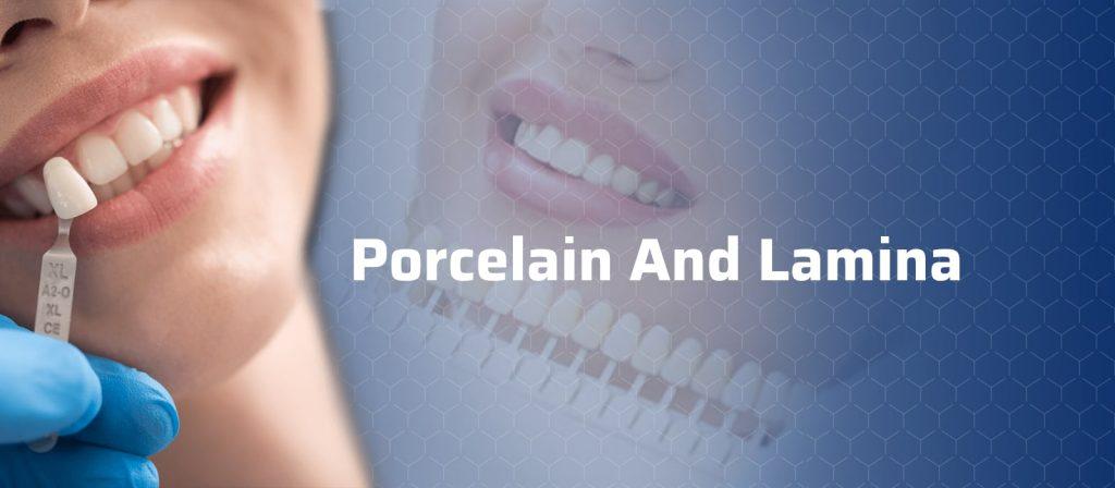 Porcelain and Lamina