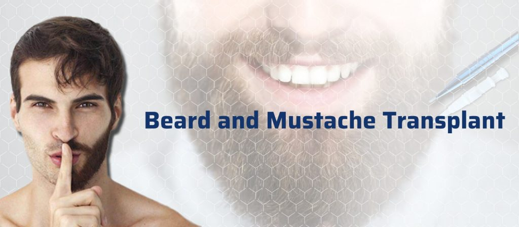 Beard and Mustache Transplant