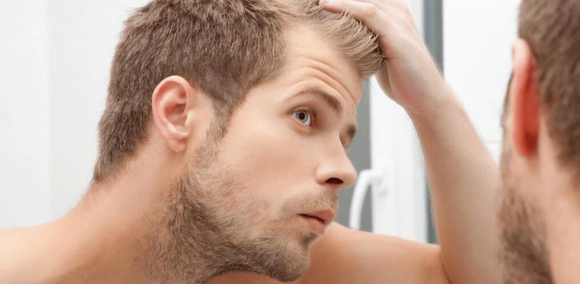 Best Hair Loss Treatment For Men