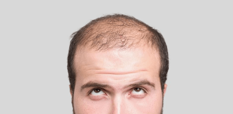 Hair Transplant Grafts: Do I Need 7000 Grafts?