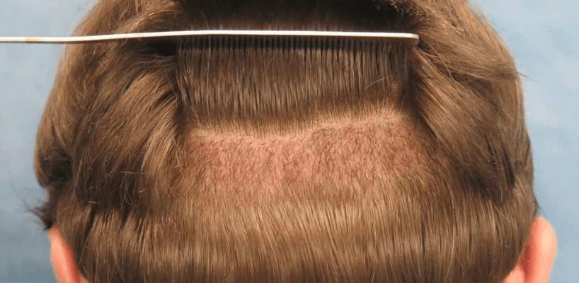 Hair Transplant Success Rate