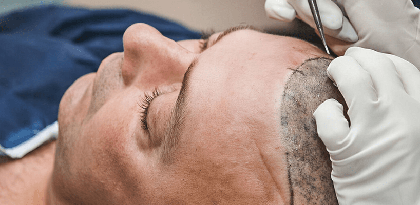 Hair Transplant Surgery From Start to Finish