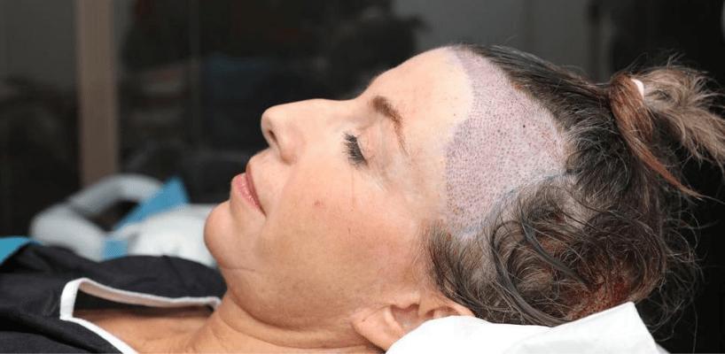Hair Transplant For Women