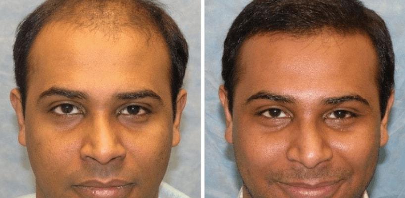 Best Hair Transplant Surgery