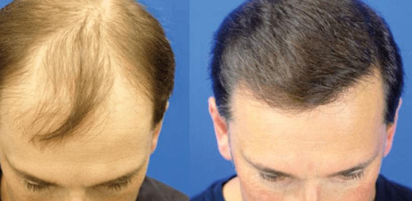 Best Hairline Transplant Surgeon