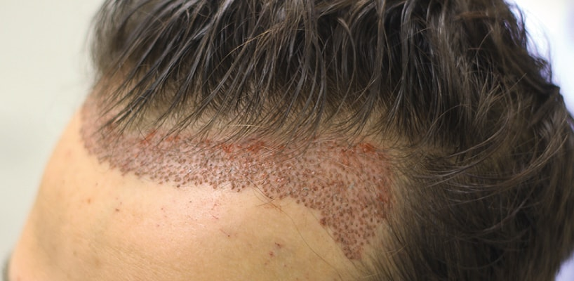 Can I Use Hair Fibres After Hair Transplant?