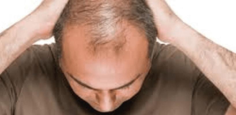 Hair Growth Surgery