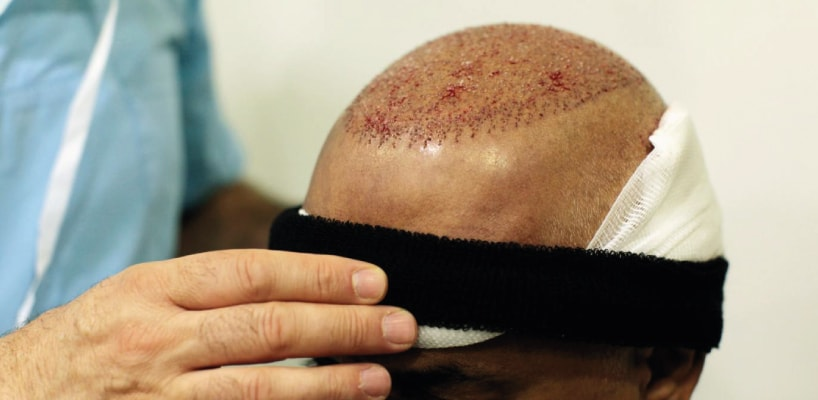 Hair Implant Turkey