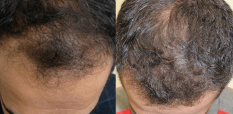 Hair Reconstruction Procedure