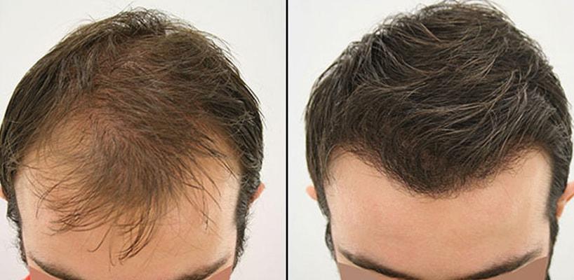 Hair Transplant for Long Hair in Turkey