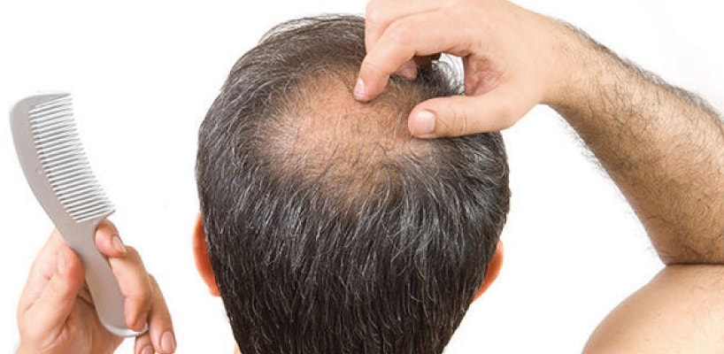How to Stop Hair Loss in Men?