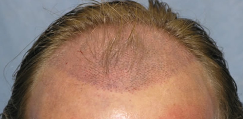 Men's Hair Transplant Surgery