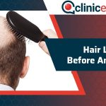 Hair Loss Before and After