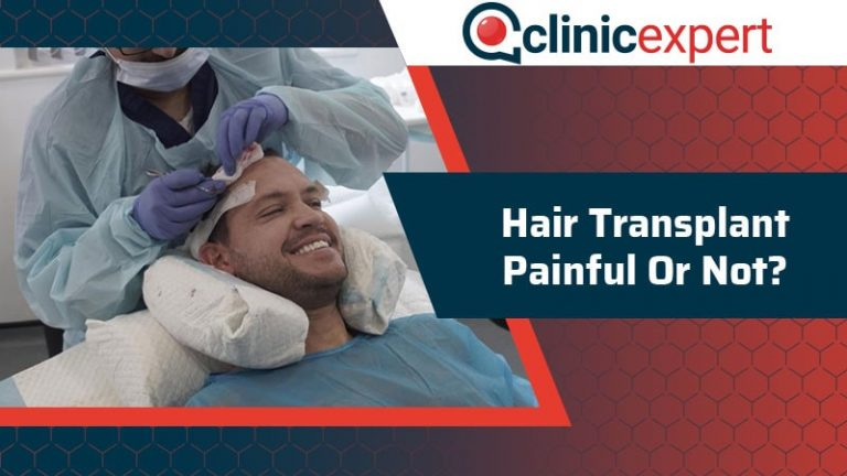 Hair Transplant Painful or Not?