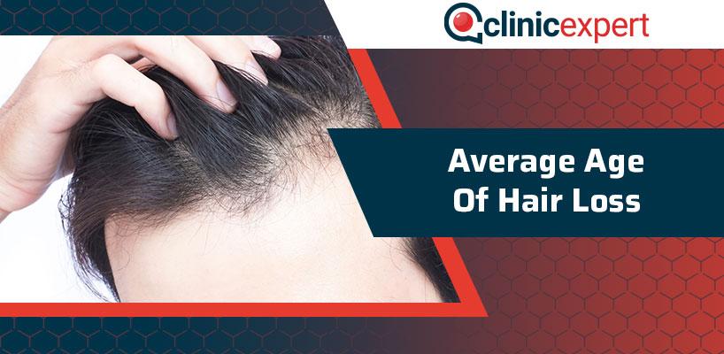 Average Age Of Hair Loss