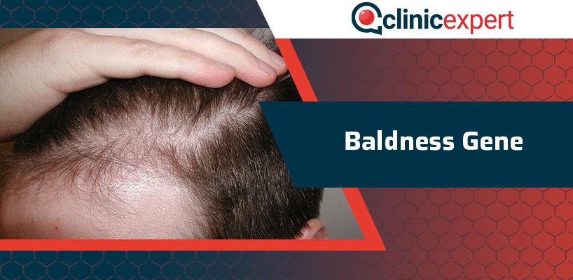 Baldness Gene