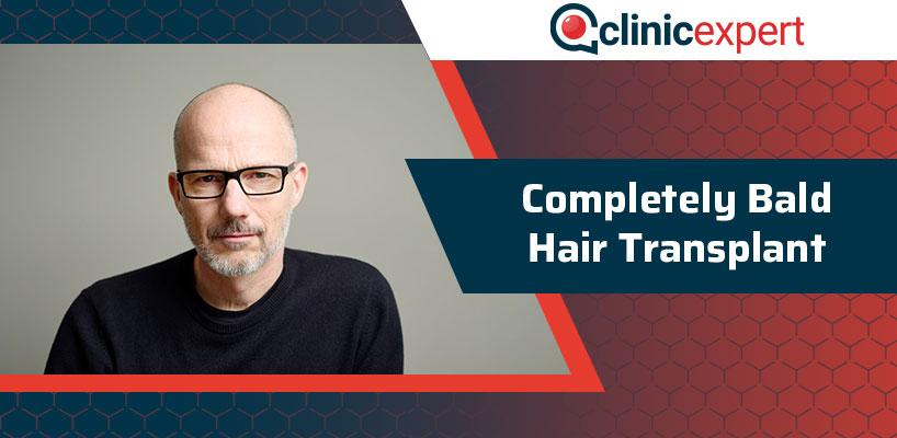 Completely Bald Hair Transplant