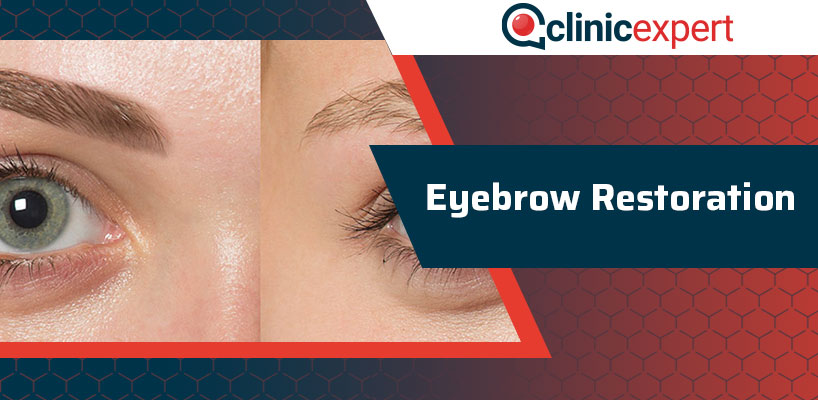 Eyebrow Restoration