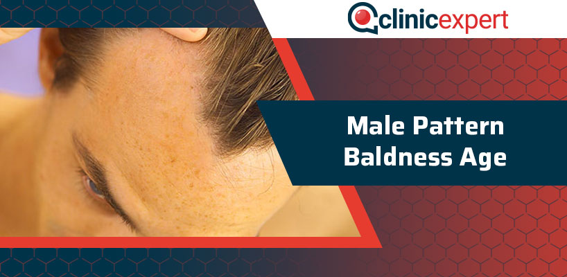 Male Pattern Baldness Age