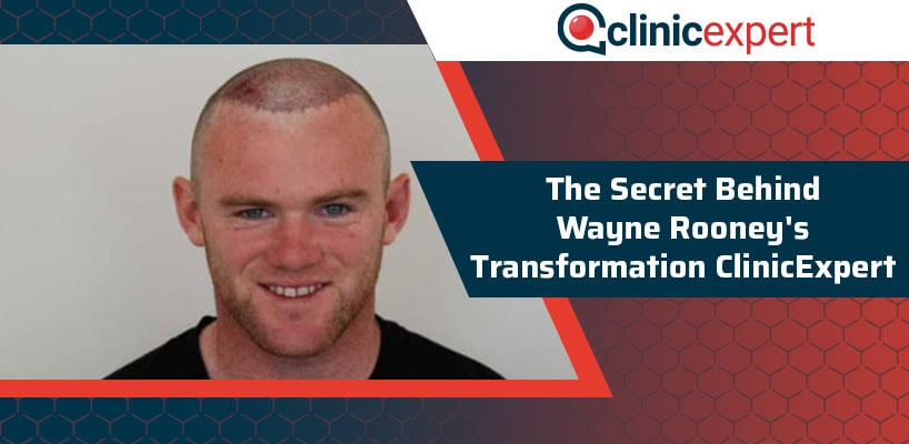 The Secret Behind Wayne Rooney's Transformation