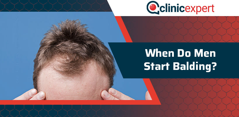 When Do Men Start Balding?