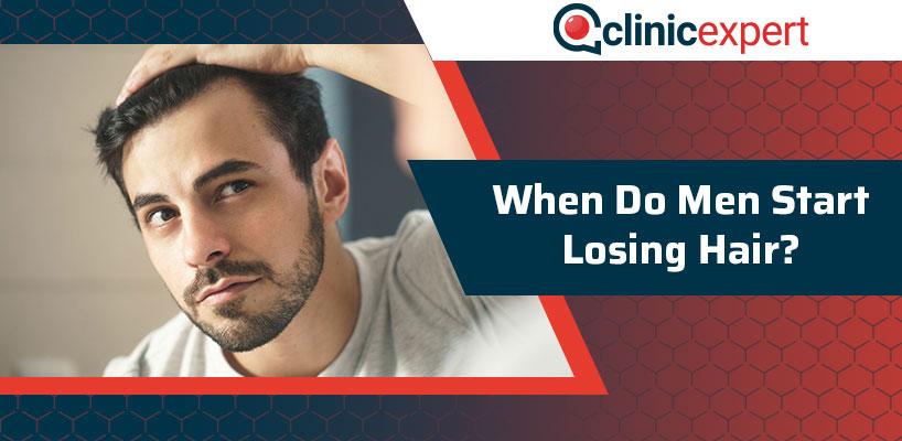 When Do Men Start Losing Hair?
