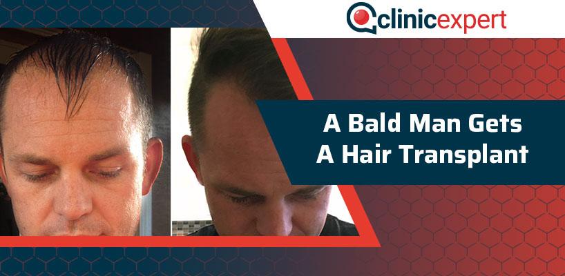A Bald Man Gets a Hair Transplant