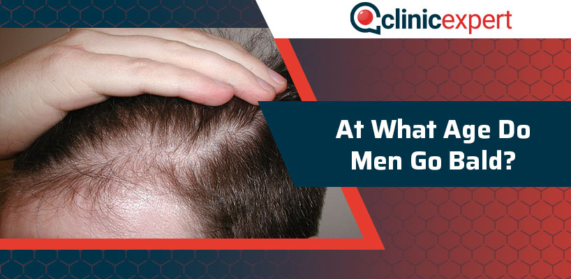 At What Age Do Men Go Bald?