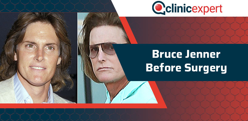 Bruce Jenner Before Surgery
